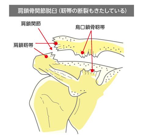 右肩鎖骨間接脱臼