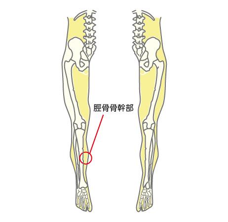 脛骨骨幹部の部位説明